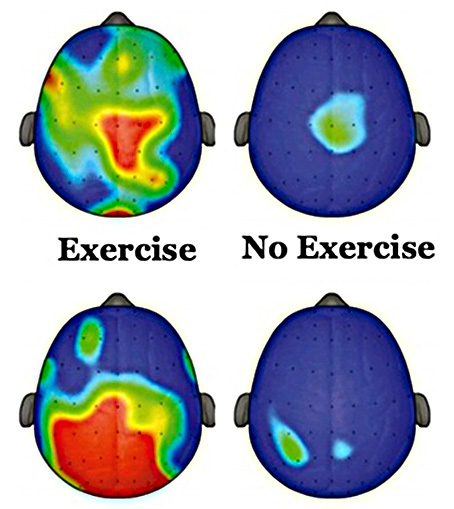 Benefits for kids who play soccer: Graphic showing brain activity from exercise